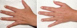 удаление пигментных пятен с кожи рук
