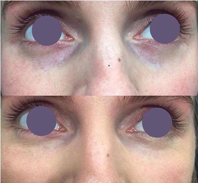 Коррекция носослезной борозды пептидным препаратом