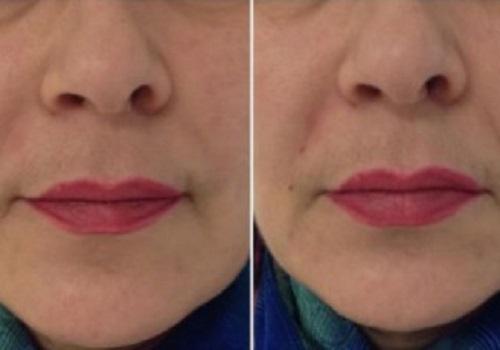 увеличение губ гиалуроновой кислотой воронеж цена