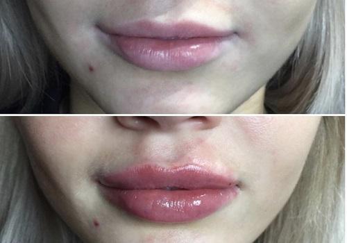 воронеж увеличение губ