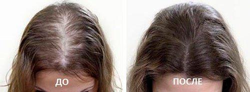 плазмолифтинг для волос в Воронеже