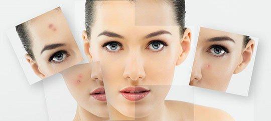 Причины возникновения и методы лечения акне в BeautyLand