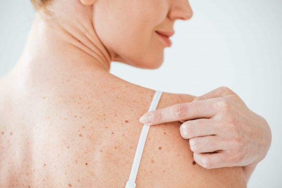 родимое пятно на плече