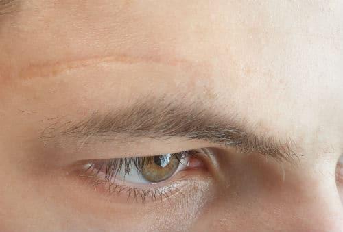 удаление шрамов на лице воронеж
